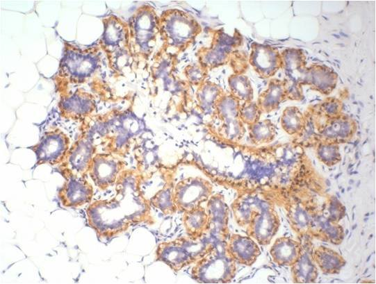 Fig.1.Immunohistochemistry staining (1:200) of β-Actin in Human ovary tissue.