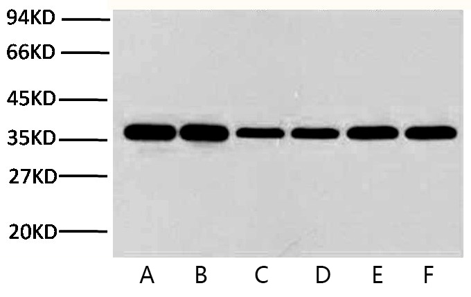 Fig.1. Western blot analysis of Hela (1), rat brain (2), rabbit muscle(3), sheep muscle(4), and mouse brain (5), diluted at 1:10000.