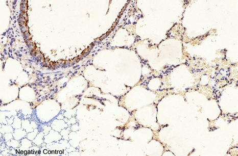 Fig.6. Immunohistochemical analysis of paraffin-embedded rat lung tissue. 1, β-Tubulin Monoclonal Antibody (3G6) was diluted at 1:400 (4°C, overnight). Negative control was used by secondary antibody only.