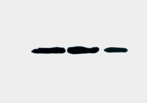 Fig.8. Western blot analysis of rice sample, diluted at 1:2000.The first two strips on the left are the concentrated nuclear proteins from the rice sample, and the third lane is the chloroplast proteins from the rice sample.