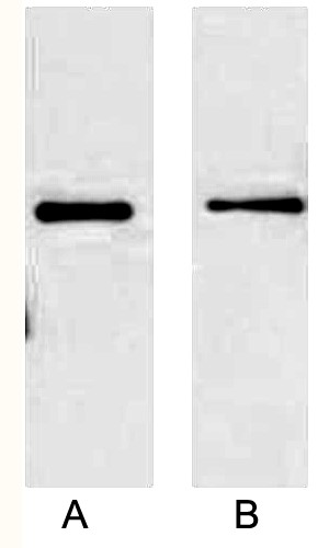 Fig.2. Western blot analysis of 2ug His fusion protein with Anti-His Mouse Monoclonal Antibody (5C3) in 1:5000 dilution (lane A) and 1:10000 dilution (lane B).