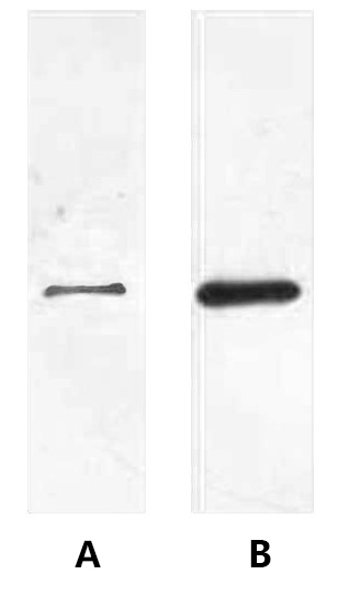 Fig. Western blot analysis of His fusion protein in cell lysate from transfected 293T cells (lane A) and baculovirus expression vector system (lane B) at 1:2000 dilutions.