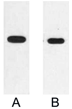 Fig. Western blot analysis of 2ug E2 fusion protein with Anti-E2 monoclonal antibody in 1:2000 (lane A) and 1:5000 (lane B) dilutions.