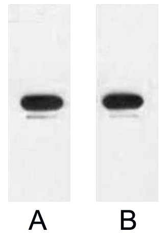 Fig. Western blot analysis of 1ug KT3 fusion protein with Anti-KT3 monoclonal antibody in 1:3000 (lane A) and 1:5000 (lane B) dilutions.