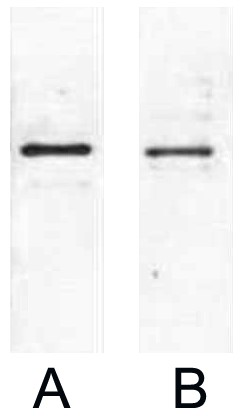Fig. Western blot analysis of 1ug S-Tag fusion protein with Anti-S Tag monoclonal antibody in 1:2000 (lane A) , 1:5000 (lane B) dilutions.