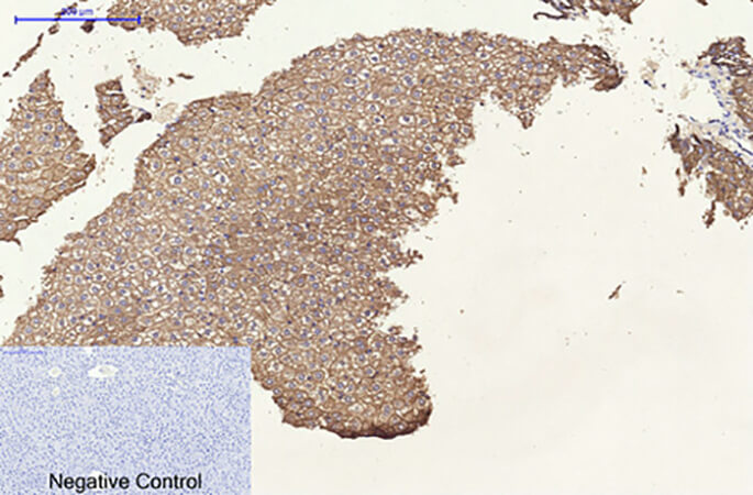 Fig.4. Immunohistochemical analysis of paraffin-embedded rat liver tissue. 1, CK8 Monoclonal Antibody was diluted at 1:200 (4°C, overnight). 2, Sodium citrate pH 6.0 was used for antibody retrieval (>98°C, 20min). 3, secondary antibody was diluted at 1:200 (room temperature, 30min). Negative control was used by secondary antibody only.