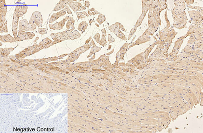 Fig.4. Immunohistochemical analysis of paraffin-embedded rat heart tissue. 1, GFAP Monoclonal Antibody was diluted at 1:200 (4°C, overnight). 2, Sodium citrate pH 6.0 was used for antibody retrieval (>98°C, 20min). 3, secondary antibody was diluted at 1:200 (room temperature, 30min). Negative control was used by secondary antibody only.