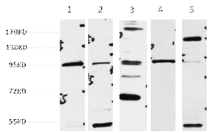 Fig.1. Western blot analysis of 1) hela, 2) 293T, 3) MCF7, 4) Mouse Brain tissue, 5) Rat LiverTissue, diluted at 1:2000.