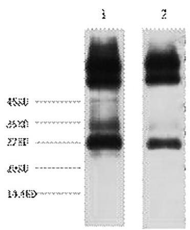 Fig.1. Western blot analysis of 1) Mouse spleen tissue, 2) Rat spleen tissue, diluted at 1:3000.