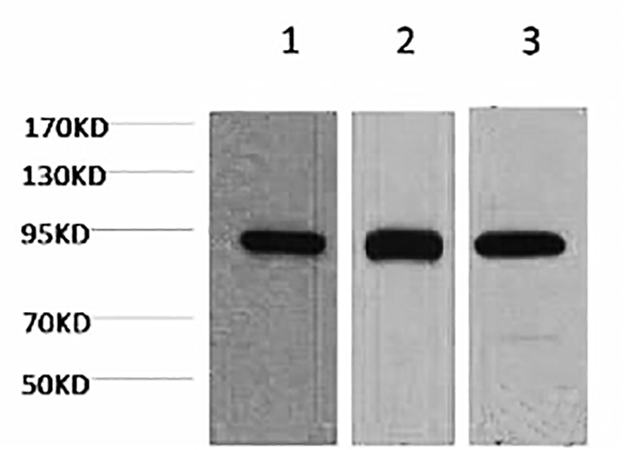 Fig.1. Western blot analysis of 1) Hela, 2) mouse brain tissue, 3) rat brain tissue, diluted at 1:2000.