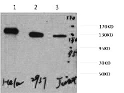 Fig. Western blot analysis of 1) Hela, 2) 293T, 3) Jurkat, diluted at 1:2000.