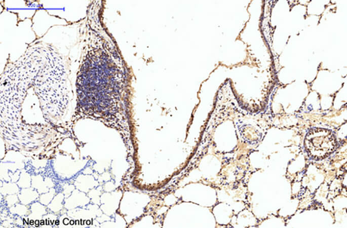 Fig.4. Immunohistochemical analysis of paraffin-embedded rat lung tissue. 1, eIF4A1 Monoclonal Antibody was diluted at 1:200 (4°C, overnight). 2, Sodium citrate pH 6.0 was used for antibody retrieval (>98°C, 20min). 3, secondary antibody was diluted at 1:200 (room temperature, 30min). Negative control was used by secondary antibody only.