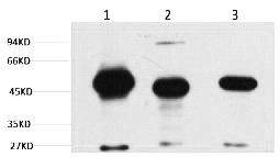 Fig. Western blot analysis of 1) Mouse Brain Tissue, 2) Rat Brain tissue, diluted at 1:2000.