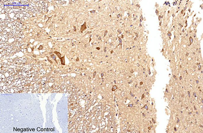 Fig.4. Immunohistochemical analysis of paraffin-embedded rat spinal cord tissue. 1, Survivin Monoclonal Antibody  was diluted at 1:200 (4°C, overnight). 2, Sodium citrate pH 6.0 was used for antibody retrieval (>98°C, 20min). 3, secondary antibody was diluted at 1:200 (room temperature, 30min). Negative control was used by secondary antibody only.