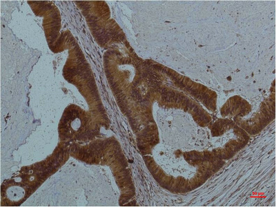 Fig.2. Immunohistochemical analysis of paraffin-embedded Human Colon Caricnoma using STAT3Mouse mAb diluted at 1:200.