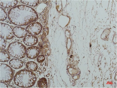 Fig.2. Immunohistochemical analysis of paraffin-embedded Human Colon Caricnoma using GRP78/BipMouse mAb diluted at 1:200.