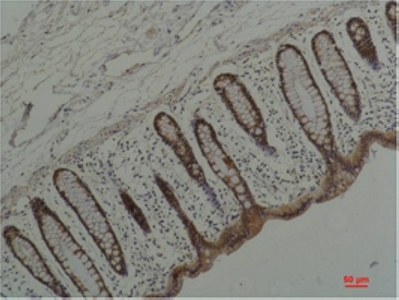 Fig.2. Immunohistochemical analysis of paraffin-embedded Human Colon Caricnoma using HSP90 α Mouse mAb diluted at 1:200.