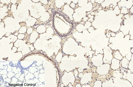 Fig.5. Immunohistochemical analysis of paraffin-embedded rat lung tissue. 1, β I tubulin Monoclonal Antibody was diluted at 1:200 (4°C, overnight). 2, Sodium citrate pH 6.0 was used for antibody retrieval (>98°C, 20min). 3, secondary antibody was diluted at 1:200 (room temperature, 30min). Negative control was used by secondary antibody only.