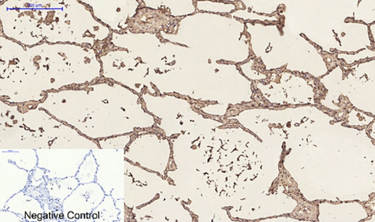 Fig.3. Immunohistochemical analysis of paraffin-embedded human lung tissue. 1, CD23 Monoclonal Antibody was diluted at 1:200 (4°C, overnight). 2, Sodium citrate pH 6.0 was used for antibody retrieval (>98°C, 20min). 3, secondary antibody was diluted at 1:200 (room temperature, 30min). Negative control was used by secondary antibody only.
