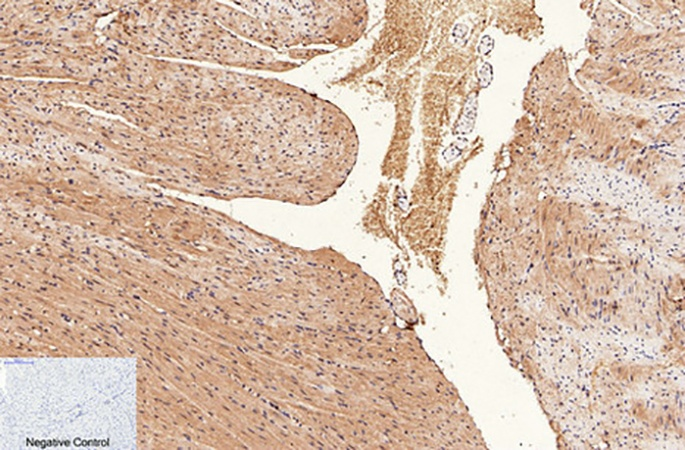 Fig.2. Immunohistochemical analysis of paraffin-embedded mouse heart tissue. 1, CD1 Monoclonal Antibody was diluted at 1:200 (4°C, overnight). 2, Sodium citrate pH 6.0 was used for antibody retrieval (>98°C, 20min). 3, secondary antibody was diluted at 1:200 (room temperature, 30min). Negative control was used by secondary antibody only.