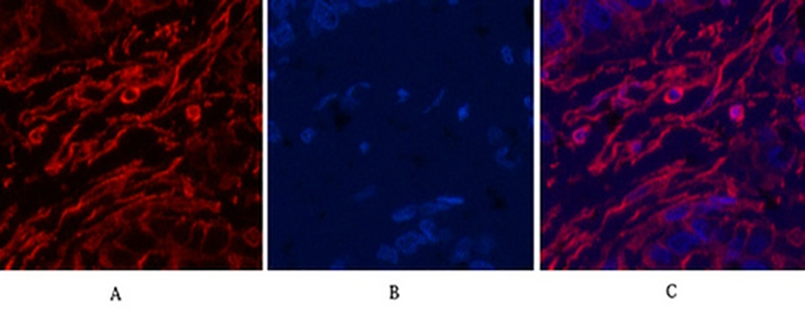 Fig.2. Immunofluorescence analysis of human liver cancer tissue. 1, α skeletal muscle actin Monoclonal Antibody (red) was diluted at 1:200 (4°C, overnight). 2, Cy3 Labeled secondary antibody was diluted at 1:300 (room temperature, 50min). 3, Picture B: DAPI (blue) 10min. Picture A: Target. Picture B: DAPI. Picture C: merge of A+B.