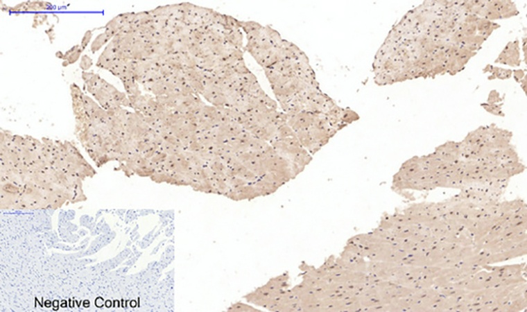 Fig.4. Immunohistochemical analysis of paraffin-embedded rat heart tissue. 1, Desmin Monoclonal Antibody  was diluted at 1:200 (4°C, overnight). 2, Sodium citrate pH 6.0 was used for antibody retrieval (>98°C, 20min). 3, secondary antibody was diluted at 1:200 (room temperature, 30min). Negative control was used by secondary antibody only.