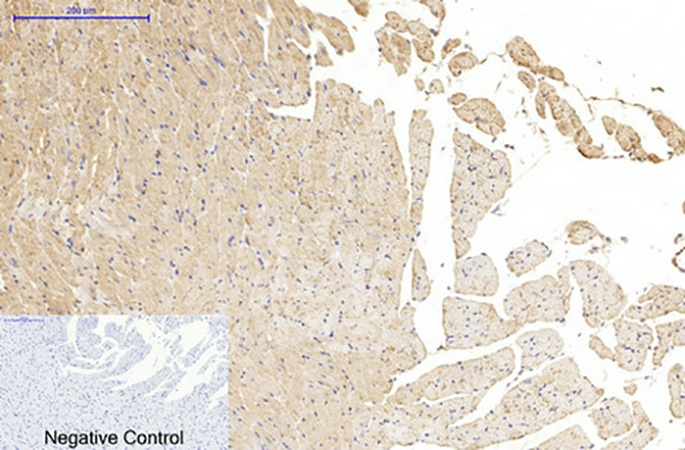 Fig.6. Immunohistochemical analysis of paraffin-embedded rat heart tissue. 1, α-tubulin (Acetyl Lys40) Monoclonal Antibody (4A8) was diluted at 1:200 (4°C, overnight). 2, Sodium citrate pH 6.0 was used for antibody retrieval (>98°C, 20min). 3, secondary antibody was diluted at 1:200 (room temperature, 30min). Negative control was used by secondary antibody only.