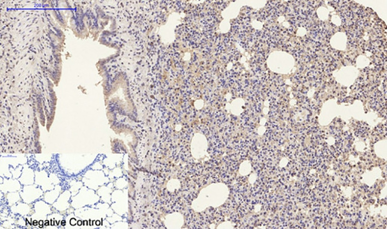 Fig.3. Immunohistochemical analysis of paraffin-embedded rat lung tissue. 1, Luciferase Mouse Monoclonal Antibody (6B8) was diluted at 1:200 (4°C, overnight). 2, Sodium citrate pH 6.0 was used for antibody retrieval (>98°C, 20min). 3, secondary antibody was diluted at 1:200 (room temperature, 30min). Negative control was used by secondary antibody only.