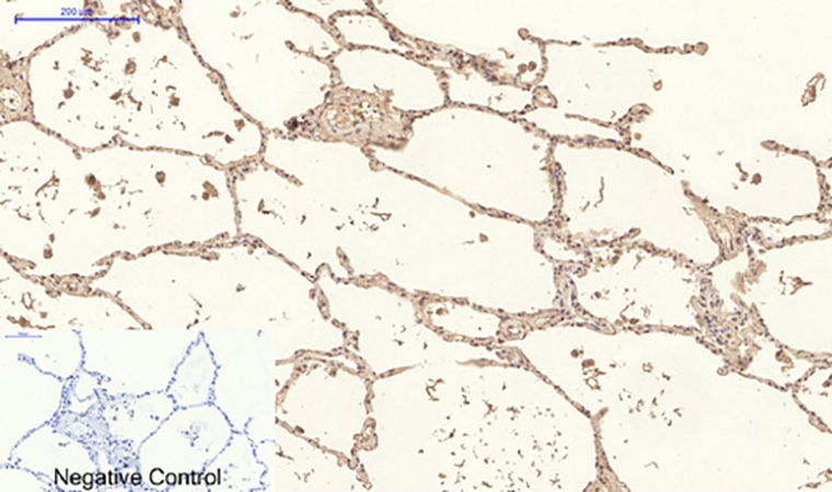 Fig.4. Immunohistochemical analysis of paraffin-embedded human lung tissue. 1, Collagen IV Mouse Monoclonal Antibody (8E5) was diluted at 1:200 (4°C, overnight). 2, Sodium citrate pH 6.0 was used for antibody retrieval (>98°C, 20min). 3, secondary antibody was diluted at 1:200 (room temperature, 30min). Negative control was used by secondary antibody only.