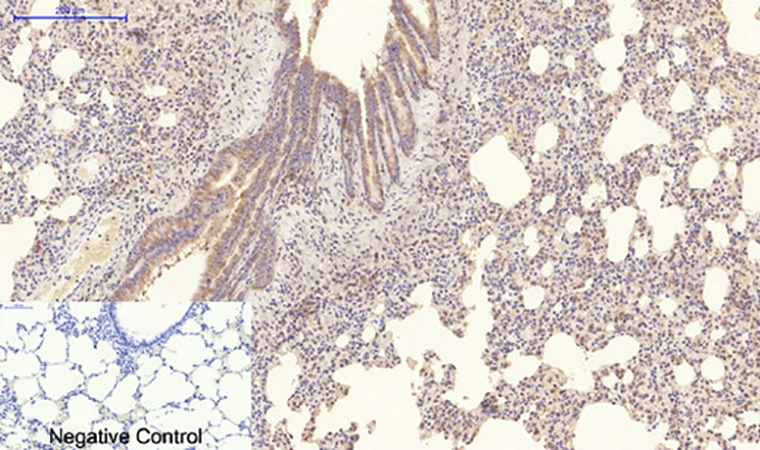 Fig.5. Immunohistochemical analysis of paraffin-embedded rat lung tissue. 1, Collagen IV Mouse Monoclonal Antibody (8E5) was diluted at 1:200 (4°C, overnight). 2, Sodium citrate pH 6.0 was used for antibody retrieval (>98°C, 20min). 3, secondary antibody was diluted at 1:200 (room temperature, 30min). Negative control was used by secondary antibody only.