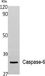 Fig. Western Blot analysis of extracts from Jurkat cells, using Cleaved-Caspase-6 p18 (A24) 多克隆 Antibody. Antibody was diluted at 1:1000.