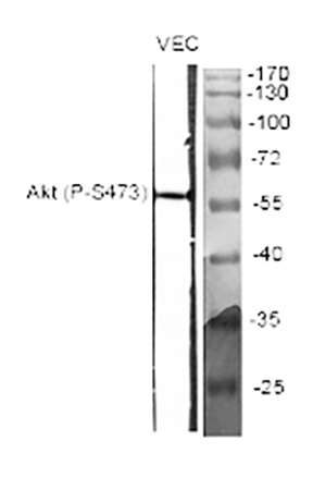 Fig.1. Western Blot analysis of various cells using Phospho-Akt (S473) 多克隆 Antibody diluted at 1:2000.