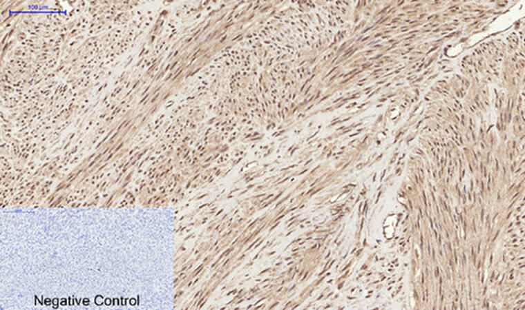 Fig.3. Immunohistochemical analysis of paraffin-embedded human uterus tissue. 1, Chk2 (phospho Thr68) Polyclonal Antibody was diluted at 1:200 (4°C, overnight). 2, Sodium citrate pH 6.0 was used for antibody retrieval (>98°C, 20min). 3, secondary antibody was diluted at 1:200 (room temperature, 30min). Negative control was used by secondary antibody only.