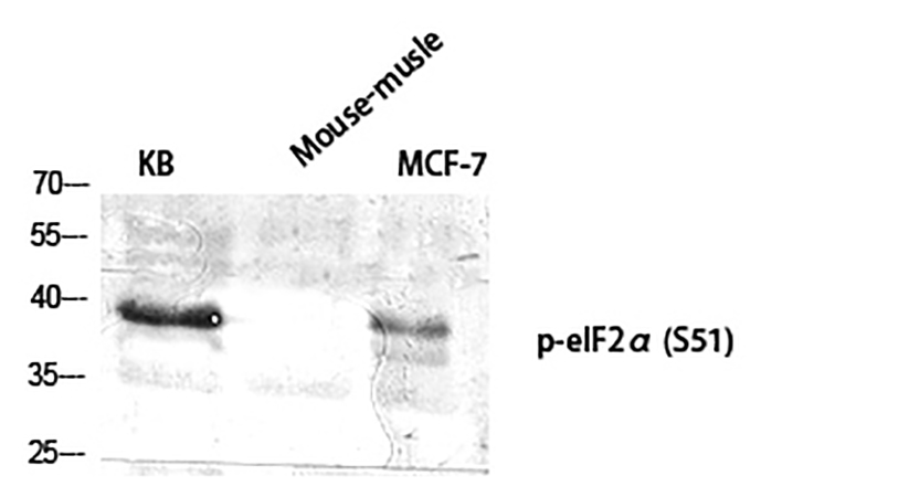 Fig.1. Western Blot analysis of KB (1, mouse-musle (2, MCF-7 (3, diluted at 1:2000.