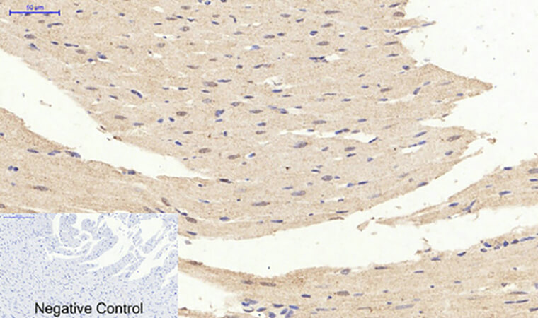Fig.6. Immunohistochemical analysis of paraffin-embedded rat heart tissue. 1, ERK 1/2 (phospho Tyr204) 多克隆 Antibody was diluted at 1:200 (4°C, overnight). 2, Sodium citrate pH 6.0 was used for antibody retrieval (>98°C, 20min). 3, secondary antibody was diluted at 1:200 (room temperature, 30min). Negative control was used by secondary antibody only.