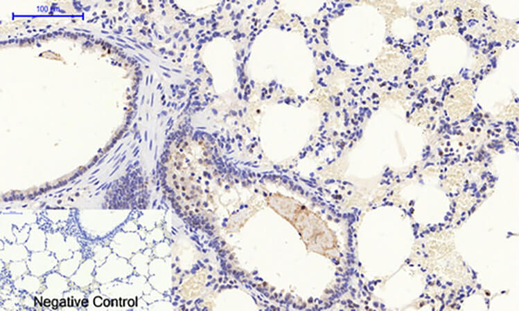 Fig.3. Immunohistochemical analysis of paraffin-embedded rat lung tissue. 1, Stat1 (phospho Tyr701) 多克隆 Antibody was diluted at 1:200 (4°C, overnight). 2, Sodium citrate pH 6.0 was used for antibody retrieval (>98°C, 20min). 3, secondary antibody was diluted at 1:200 (room temperature, 30min). Negative control was used by secondary antibody only.