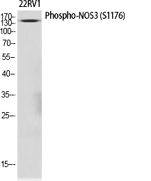 Fig.1. Western Blot analysis of various cells using Phospho-NOS3 (S1177) 多克隆 Antibody diluted at 1:1000.