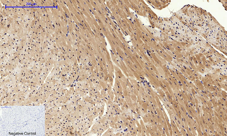 Fig.3. Immunohistochemical analysis of paraffin-embedded mouse heart tissue. 1, Calnexin 多克隆 Antibody was diluted at 1:200 (4°C, overnight). 2, Sodium citrate pH 6.0 was used for antibody retrieval (>98°C, 20min). 3, secondary antibody was diluted at 1:200 (room temperature, 30min). Negative control was used by secondary antibody only.