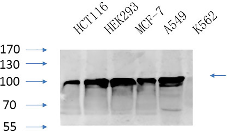 Fig.5. Western Blot analysis of HCT116 (1, HEK293 (2, MCF-7 (3, A594 (4, K562 (5, diluted at 1:1000.