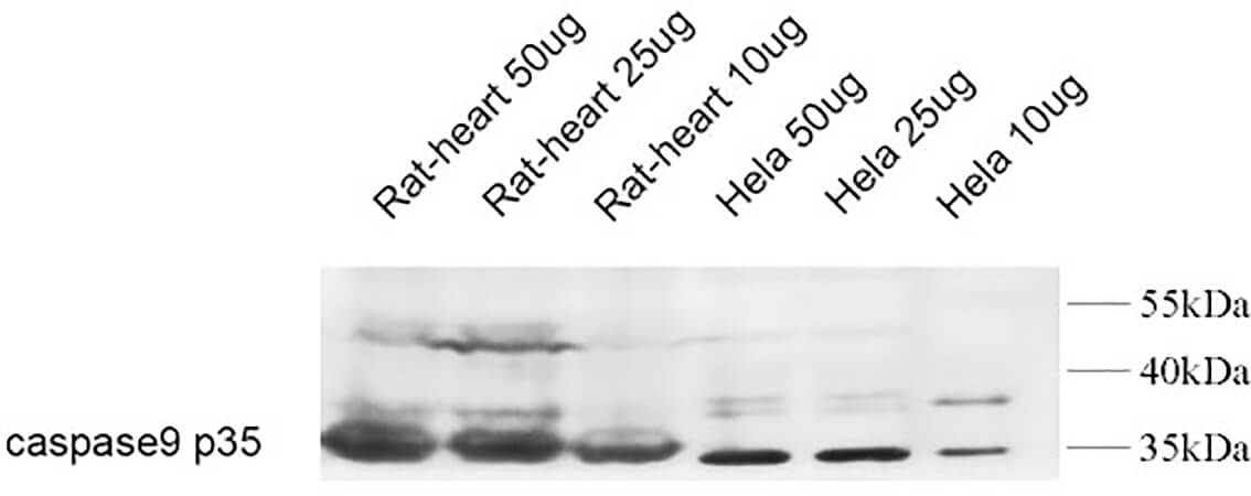 Fig.2. Western Blot analysis of rat heart 50ug (1, rat heart 25ug (2, rat heart 10ug (3, Hela 50ug (4, Hela 25ug (5, Hela 10ug (6,  diluted at 1:1000.