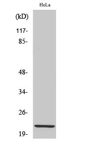 Fig. Western Blot analysis of various cells using Claudin-1 Polyclonal Antibody diluted at 1:1000.
