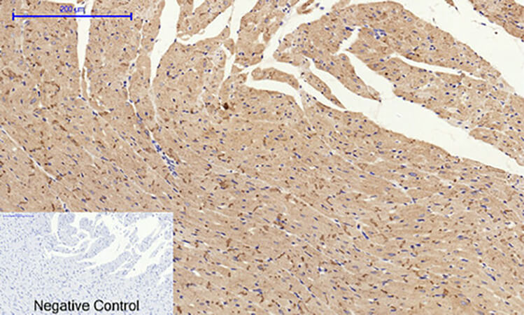 Fig.6. Immunohistochemical analysis of paraffin-embedded rat heart tissue. 1, Connexin 43 多克隆 Antibody was diluted at 1:200 (4°C, overnight). 2, Sodium citrate pH 6.0 was used for antibody retrieval (>98°C, 20min). 3, secondary antibody was diluted at 1:200 (room temperature, 30min). Negative control was used by secondary antibody only.