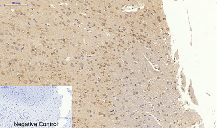 Fig.6. Immunohistochemical analysis of paraffin-embedded rat brain tissue. 1, CytokeRatin 18 Polyclonal Antibody was diluted at 1:200 (4°C, overnight). 2, Sodium citrate pH 6.0 was used for antibody retrieval (>98°C, 20min). 3, secondary antibody was diluted at 1:200 (room temperature, 30min). Negative control was used by secondary antibody only.
