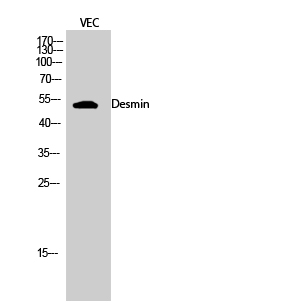 Fig.2. Western Blot analysis of VEC cells using Desmin 多克隆 Antibody diluted at 1:2000.