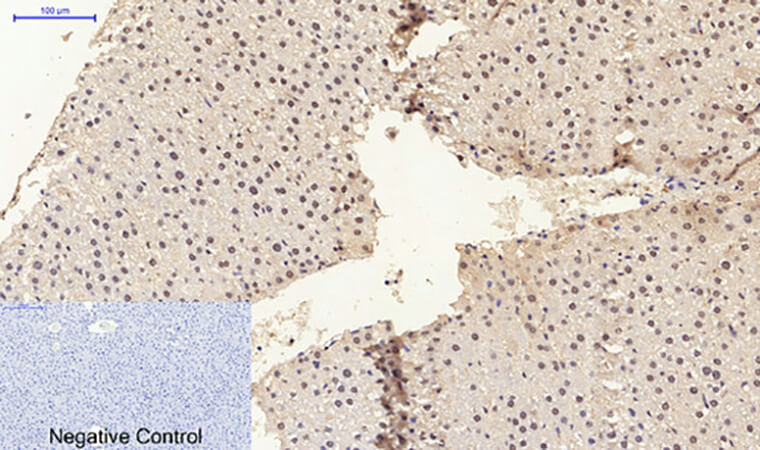 Fig.5. Immunohistochemical analysis of paraffin-embedded rat liver tissue. 1, ERβ 多克隆 Antibody was diluted at 1:200 (4°C, overnight). 2, Sodium citrate pH 6.0 was used for antibody retrieval (>98°C, 20min). 3, secondary antibody was diluted at 1:200 (room temperature, 30min). Negative control was used by secondary antibody only.