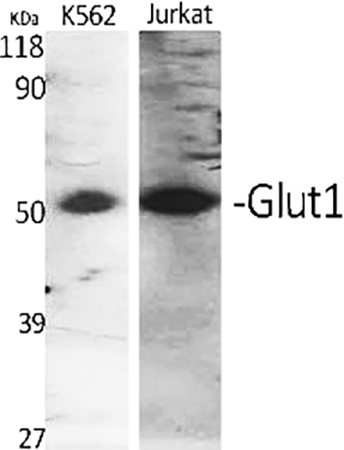 Fig.1. Western Blot analysis of K562 (1, Jukat (2, diluted at 1:500.