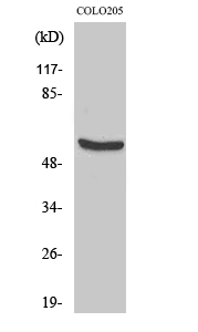 Fig.2. Western Blot analysis of COLO205 cells using HSP60 多克隆 Antibody diluted at 1:2000.