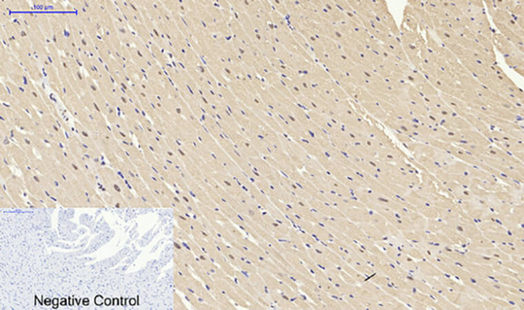 Fig.5. Immunohistochemical analysis of paraffin-embedded rat heart tissue. 1, NFκB-p105/p50 Polyclonal Antibody was diluted at 1:200 (4°C, overnight). 2, Sodium citrate pH 6.0 was used for antibody retrieval (>98°C, 20min). 3, secondary antibody was diluted at 1:200 (room temperature, 30min). Negative control was used by secondary antibody only.