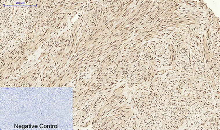 Fig.3. Immunohistochemical analysis of paraffin-embedded human uterus tissue. 1, Stat1 Polyclonal Antibody was diluted at 1:200 (4°C, overnight). 2, Sodium citrate pH 6.0 was used for antibody retrieval (>98°C, 20min). 3, secondary antibody was diluted at 1:200 (room temperature, 30min). Negative control was used by secondary antibody only.