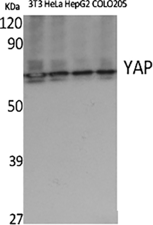 Fig.1. Western Blot analysis of 3T3 (1, Hela (2, HepG2 (3, COLO20S (4, diluted at 1:500.